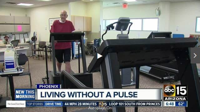 ABC 15 News features Barry Peretz, a patient of Phoenix Cardiac Surgery