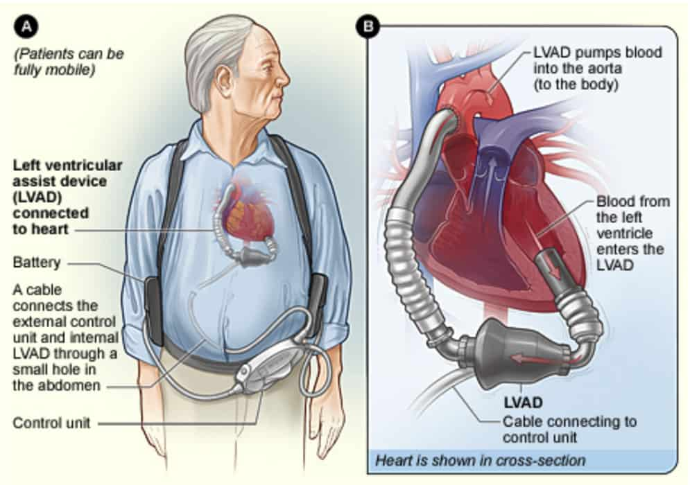 How is heart failure treated?