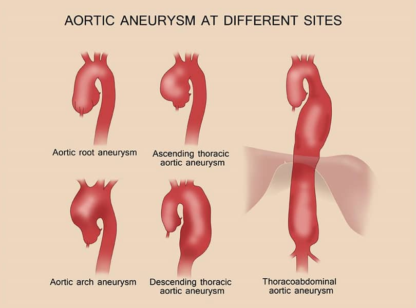 What causes an aortic aneurysm or dissection?